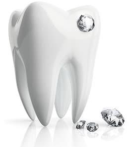 Zahndiamant